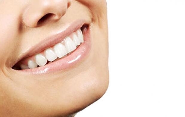 4 sesiones de blanqueamiento dental
