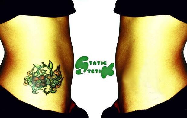 Láser eliminación de tatuajes por 29€