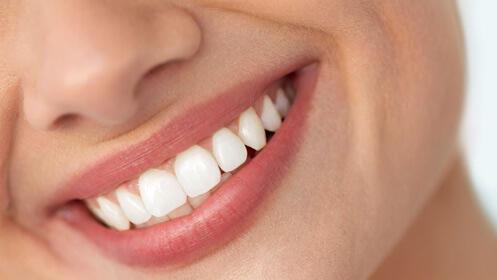 Cuida tu sonrisa, limpieza dental ultrasonidos y pulido 12,90€
