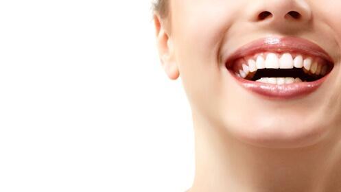 -65% en tu férula dental Michigan contra el Bruxismo