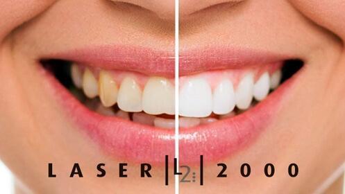 Limpieza dental en Láser 2000 en el Paseo Zorrilla