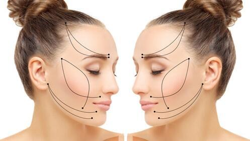 -50% sesiones de radiofrecuencia facial o corporal